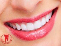 Niềng răng sứ giá bao nhiêu và ở đâu giá tốt nhất hiện nay
