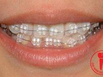 Khắc phục khuyết điểm bằng niềng răng móm giá bao nhiêu