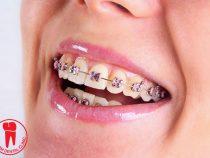 Niềng răng đang trở thành xu hướng thời trang tại Sài gòn.