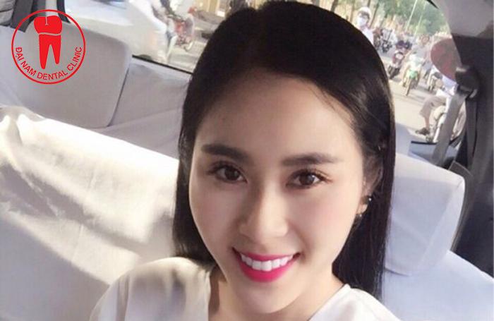 nieng-rang-su-tham-my
